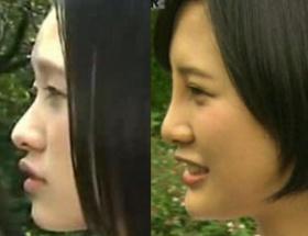 高須クリニック院長「あのアパターのようなお嬢さんのことですか?」