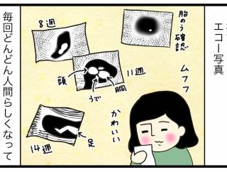 【妊娠レポ12】エコー写真の行方