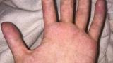 ワイの手、なぜか痒い(※画像あり)