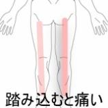 『踏み込むと痛い脚 登別室蘭すのさき鍼灸整骨院 症例報告』の画像