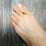 『外反母趾の足指乗り上げ』の画像