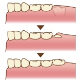 『六歳臼歯について【篠崎 ふかさわ歯科クリニック】』の画像