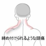 『仕事中に起きる頭痛 室蘭登別すのさき鍼灸整骨院 症例報告』の画像