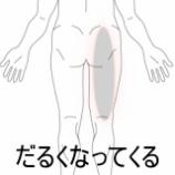 『ずっと立っているのが辛くなる臀部痛 室蘭登別すのさき鍼灸鍼灸整骨院 症例報告』の画像