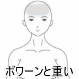 『PMSによる頭痛 室蘭登別すのさき鍼灸整骨院症例報告』の画像