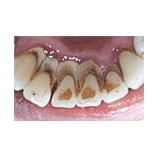 『歯茎が腫れてしまったら【篠崎ふかさわ歯科クリニック】』の画像