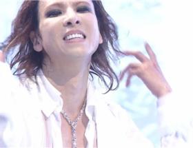 Mステに出演したYOSHIKIの顔がパンパンだったと話題に