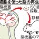 日本すげえ!骨髄損傷で不随となった体を特殊な細胞で回復 国が承認し今月から保険適用