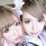 『【画像あり!】人気双子モデル吉川ちえ・ちかが整形手術!二重整形「全切開法」術後の経過を全公開!』の画像