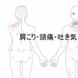 『肩こり頭痛吐き気 室蘭登別すのさき鍼灸整骨院 症例報告』の画像