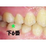 『奥歯を抜いた後、そのまま放置すると・・・【篠崎 ふかさわ歯科クリニック】』の画像