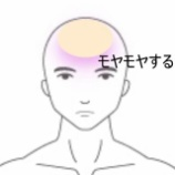 『額にあるモヤモヤ感・頭痛 室蘭登別すのさき鍼灸整骨院 症例報告』の画像