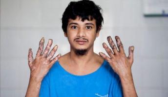 手が木になってしまう病気の人が手術した結果・・・・