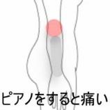 『肘と腕の痛み 室蘭登別すのさき鍼灸整骨院 症例報告』の画像