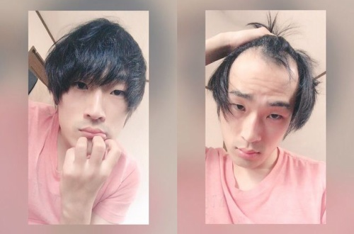 【画像】こんな感じで後ろから髪持ってきてハゲ隠してる奴wwwwwwwwwwwwwwwwwwwwwwwwwwwのサムネイル画像