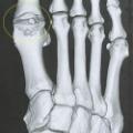 脚の骨の変形が発覚