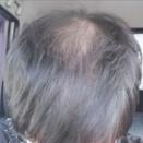 【超画像報】ワイ(24)の頭皮、ガチのマジで終わる・・・