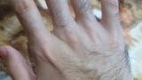 ワイの手、めちゃくちゃ毛深い(※画像あり)