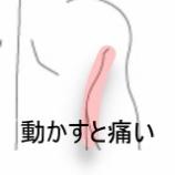 『部活動に参加すると痛くなる肩 室蘭登別すのさき鍼灸整骨院 症例報告』の画像