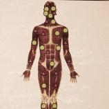 『命に関わる深刻な症状を3年で克服した「ユニコーン計画」の全貌をnoteで公開 vol.2273』の画像
