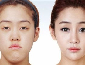 """【画像】めっちゃ美人の韓国美女の """"整形前"""" ヤバすぎ"""