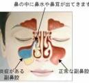 ワイ蓄膿症が顔のレントゲン撮った結果ww