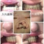 私、重度の口唇口蓋裂です。