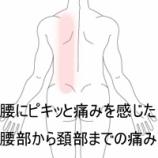 『腰の痛みが首まで波及した 室蘭登別すのさき鍼灸整骨院症例報告』の画像