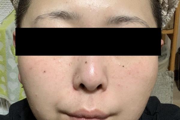 脂 漏 性 皮膚 炎 治し 方 頭皮・顔・鼻の脂漏性皮膚炎の治し方|3年間悩んだ私が辿り着いた答え...