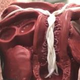 『犬の寄生虫:フィラリアの生態』の画像