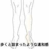 『足首の違和感を・つまり 室蘭登別すのさき鍼灸整骨院 症例報告』の画像