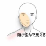 『顔の歪みが気になる 室蘭登別すのさき鍼灸整骨院 症例報告』の画像