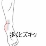 『踵の痛み 室蘭登別すのさき鍼灸整骨院 症例報告』の画像