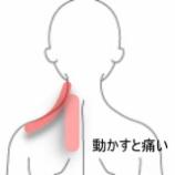 『ストレスを受けてからの頸痛 室蘭登別すのさき鍼灸整骨院 症例報告』の画像