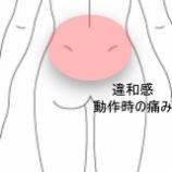 『寝返りのときに起きてしまう腰痛 室蘭登別すのさき鍼灸整骨院 症例報告』の画像