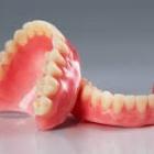 『「入れ歯」(artificial [false]teeth)のこと』の画像