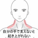 『起き上がるときの首の痛み 室蘭登別すのさき鍼灸整骨院 症例報告』の画像