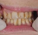 【驚愕、画像あり】歯の治療に900万円使った結果。