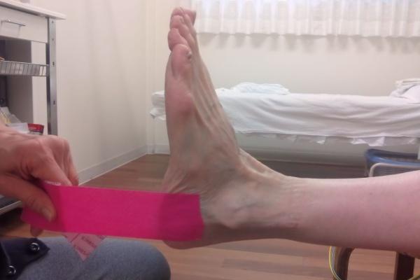テーピング 脛骨 外 有 性 痛
