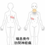 『肋間神経痛 室蘭登別すのさき鍼灸整骨院 症例報告』の画像