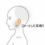 『メニエール病 室蘭登別すのさき鍼灸整骨院 症例報告』の画像