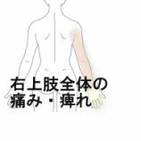 『上肢全体の痛みと痺れ 室蘭登別すのさき鍼灸整骨院 症例報告』の画像