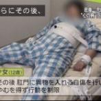 【画像】12歳の女の子、精神病棟で四肢拘束のおしおきをされてしまうwww