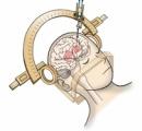 パーキンソン病患者の脳内にiPS細胞から作った神経細胞を移植…京大