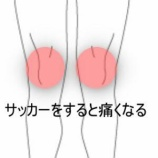 『膝の痛み 室蘭登別すのさき鍼灸整骨院 症例報告』の画像
