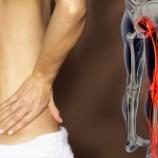 『坐骨神経痛にリリカは効くのか?』の画像