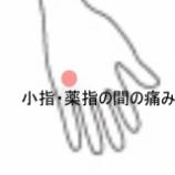 『手の痛み 室蘭登別すのさき鍼灸整骨院 症例報告』の画像