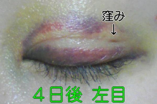 目の周り 内出血 早く治す