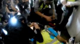 【香港】外国人記者が警察のゴム弾で片目失明