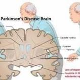 """『2020.8.2 崎谷 博征氏特集 -『 """"腸""""から始まる脳の病気』アルツハイマー、パーキンソン病やハンチントン舞踏病などの神経難病と言われる疾患に特徴は何でしょうか?』の画像"""